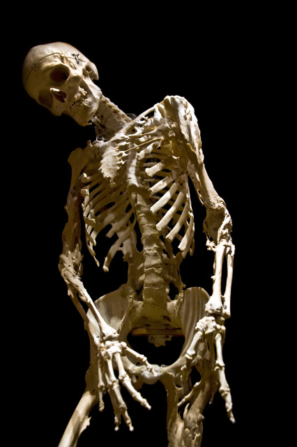 The skeleton of Harry Eastlack, a sufferer of Fibrodysplasia Ossificans Progressiva (FOP) (Evi Numen/Mütter Museum)
