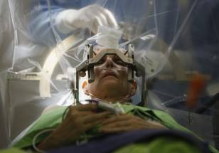 Nevro-cərrahlar insanın ən mürəkkəb bədən orqanı olan beyin üzərində işləyirlər.