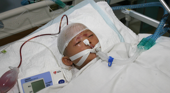 In a picture taken on October 16, 2011, two-year-old girl nicknamed Yue Yue is treated at a hospital in Guangzhou