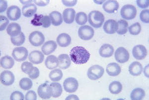 Micrograph reveals a mature Plasmodium vivax trophozoite (Photo: US Centers for Disease Control and Prevention)