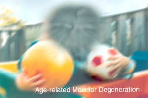 A scene as it might be viewed by a person with age-related macular degeneration. (Image: National Eye Institute, National Institutes of Health)