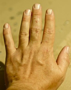 Indian researchers say the creases between fingers on the back of the hand can indicate a person's cholesterol levels. (Photo: David DeHetre via Flickr/Creative Commons)