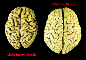 Brain affected by Alzheimer's Disease (left) vs Normal Brain (right) - (Image: US Dept of Veterans Affairs)