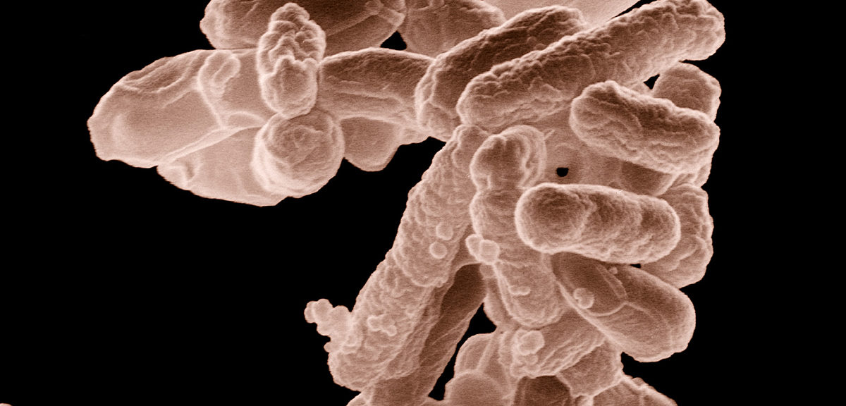 A cluster of E. coli bacteria magnified 10,000 times. (USDA)