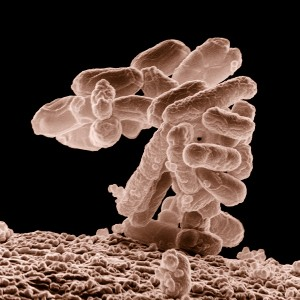 A cluster E. coli bacteria magnified 10,000 times. Georgia Tech researchers found and documented many types of bacteria, include E.coli, up in the middle to upper regions of the Troposphere. (Photo: USDA)
