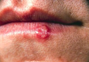 Lip of a patient with a herpes simplex lesion on the lower lip. (CDC)