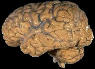 Human brain (NIH)