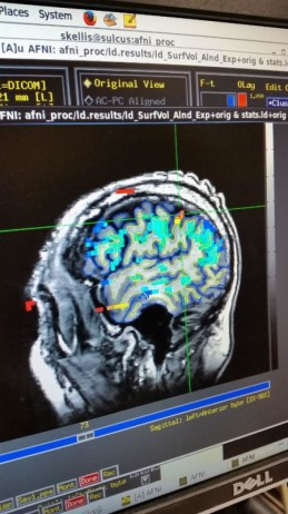 Example of an fMRI scan used for targeting the device implantation location. (Caltech)