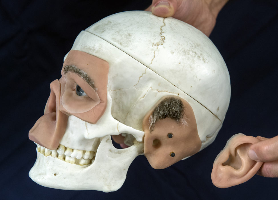 An exhibitor shows a skull model with 3D modelled prostheses during the FabCon 3.D and Rapid.Tech international fairs in Erfurt, Germany on June 20, 2017. (AP)