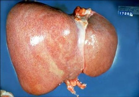 A liver with large deposits of fat (Goysaowaluck/Creative Commons Attribution-Share Alike 3.0 Unported via Wikimedia Commons)