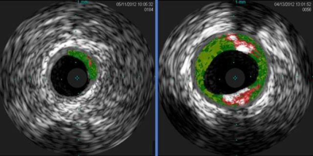 Cross-sectional ultrasound images of coronary arteries from patients enrolled in the study. Plaque buildup (colored areas) in an artery from a patient that lacks sensitivity to red meat allergen (left) is much lower than plaque levels in an artery from a patient with sensitivity to red meat allergen (right). (Angela Taylor, M.D., University of Virginia Health System)