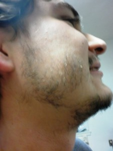 Participating in No Shave November 2010