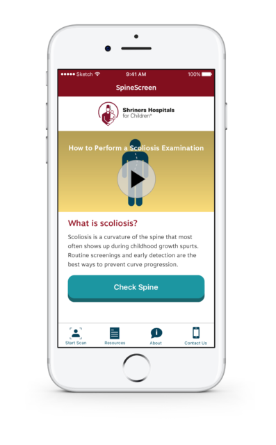 A screenshot from SpineScreen that helps users understand scoliosis and how to check for its symptoms. (Shriners Hospitals for Children)