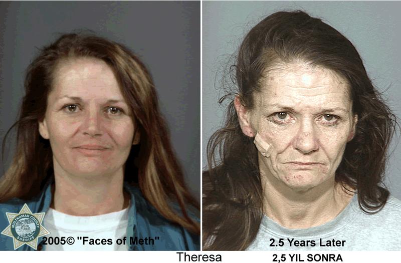 Реабилитация и восстановление при кокаиновой зависимости