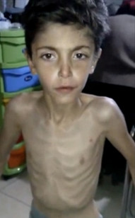 An emaciated Syrian boy receives treatment at a local field clinic in Madaya, Syria, in an image taken from video posted by Madaya Medical Corps on Jan. 8, 2016. (AP)