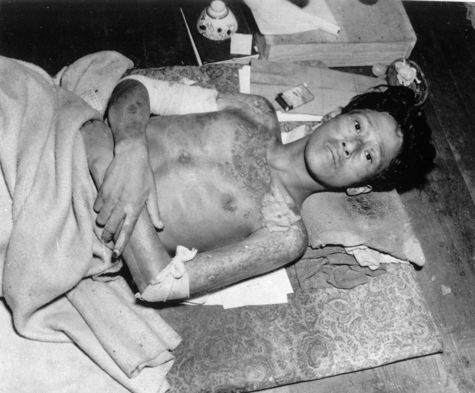 A young and ill man, a victim of the second atomic bomb ever used in warfare, is shown in Nagasaki, in late 1945. The bombing killed more than 70,000 people instantly, with ten thousands dying later from effects of the radioactive fallout.  (AP)